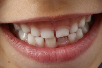Igiene orale nei bambini: 4 regole e gli strumenti alleati